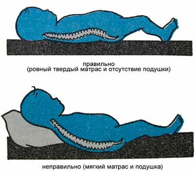 Положение ребенка во время сна